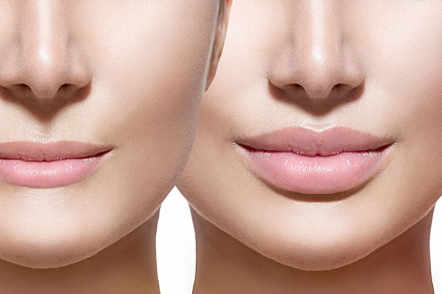 Acido Hialurónico - Dr. Candau Maxilofacial - Cirugía Estética Facial - Córdoba