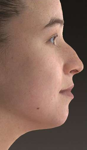 simulacion-virtual-cirugía-maxilofacial-dr-candau1