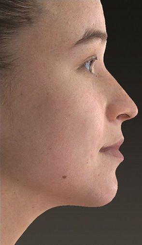 simulacion-virtual-cirugía-maxilofacial-dr-candau3-compressor
