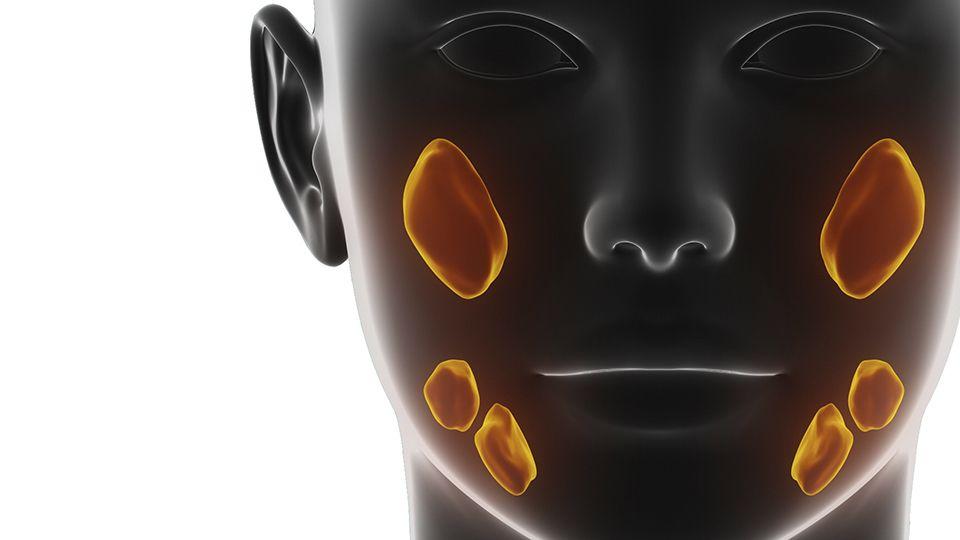 Glandulas Salivales - Dr. Candau Maxilofacial - Cirugía Estética Facial - Córdoba