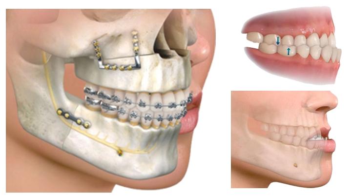 Cirugía Ortognática Dr-Candau cordoba
