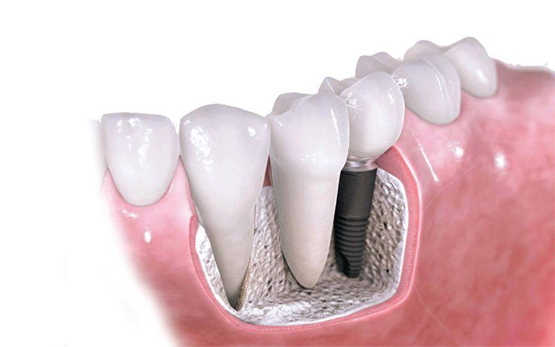 Implantología Dental Dr Candau Maxilofacial