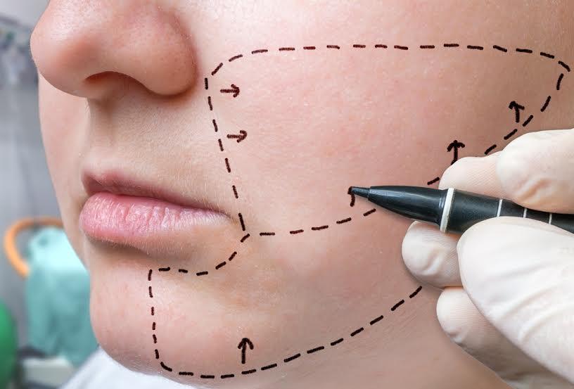 Lipofilling con Dr. Candau Cirugía Estética Facial