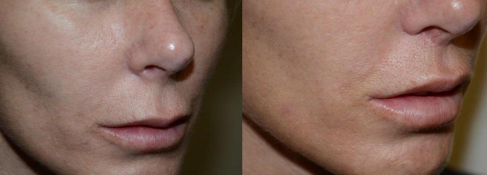 Lip Lift - Rejuvenecimiento Labial