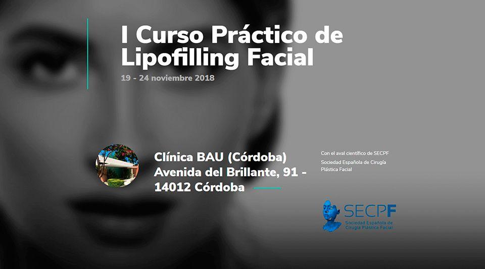 curso-practico-lipofilling-facial