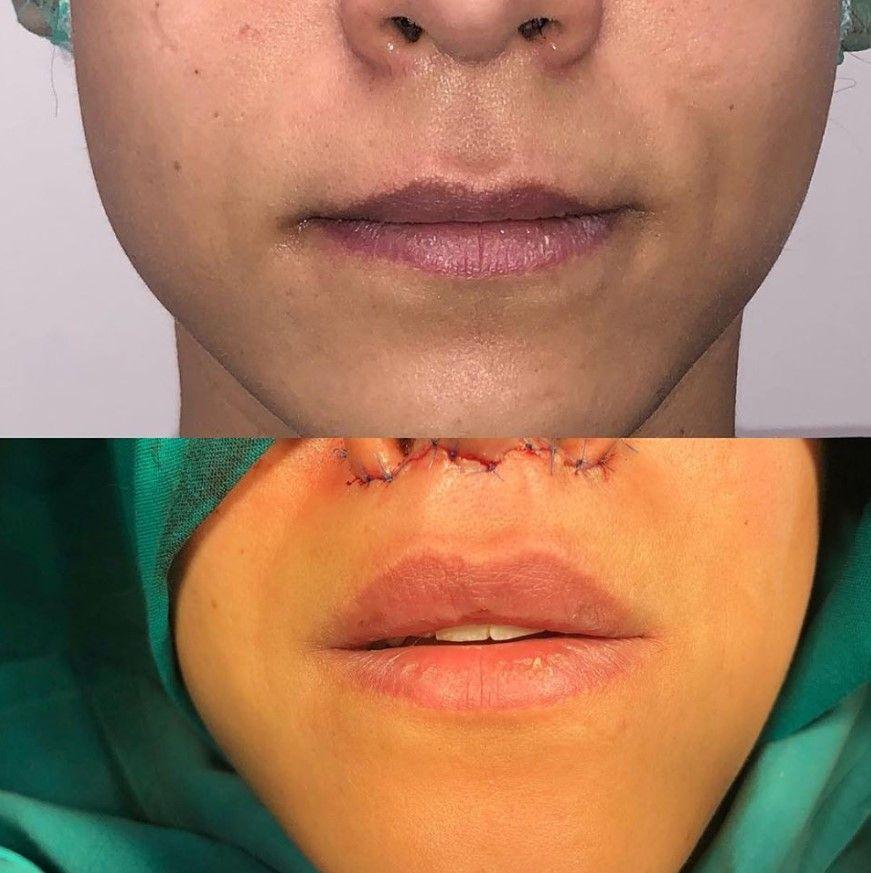 lip-lift-cirugia-de-elevacion-de-labio Dr Candau