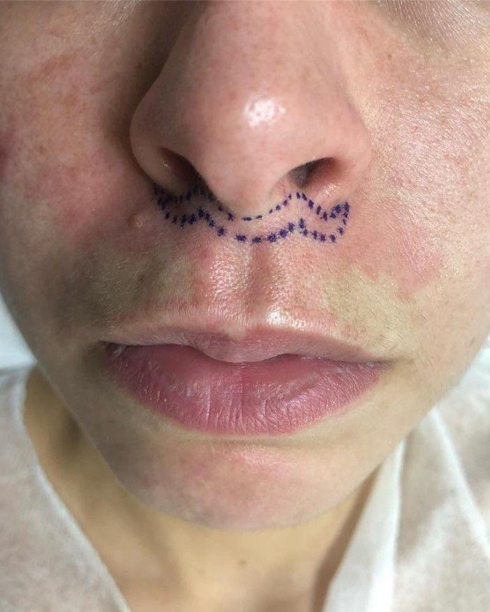 liftlip-cirugia-labio-superior