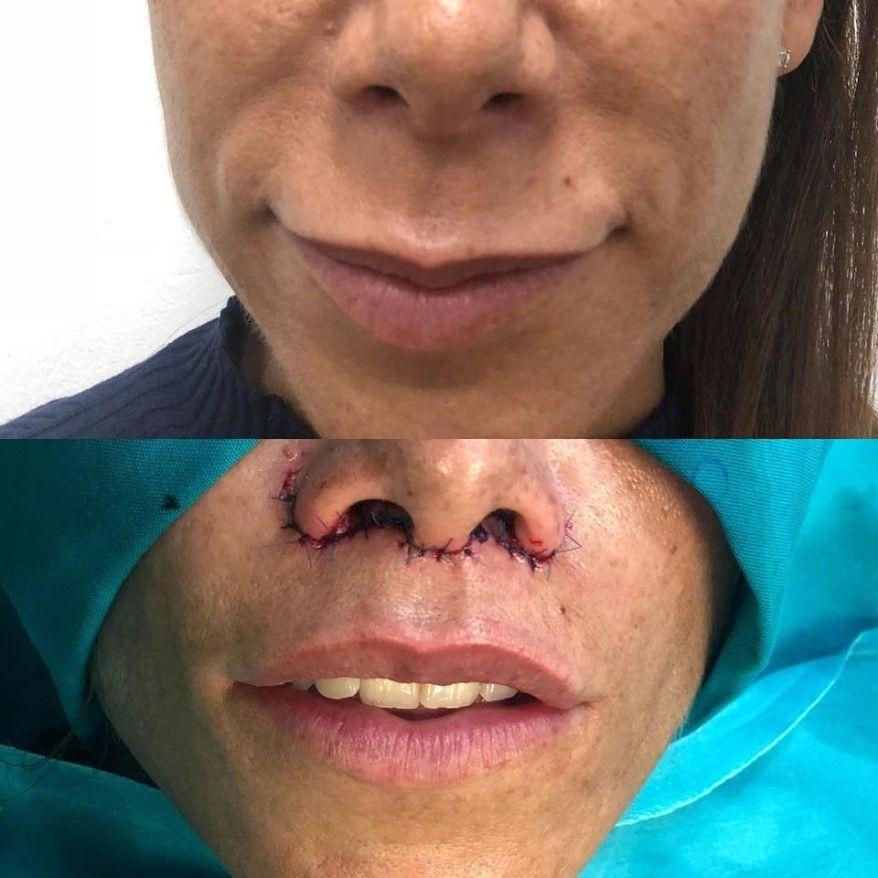 lip-lift-cirugia-de-elevacion-de-labio
