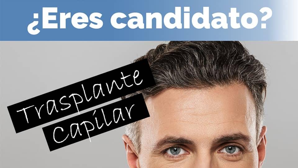 candidato-trasplante-capilarcandidato-trasplante-capilar