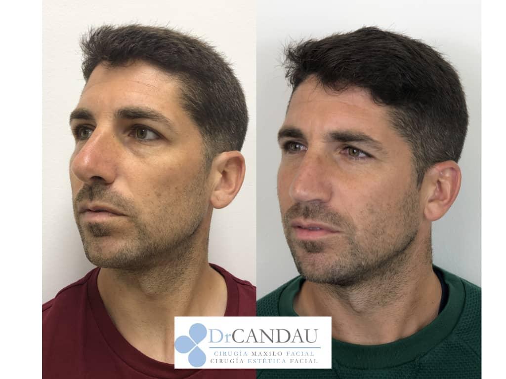 septorinoplastia-ultrasonica-dr-candau-2