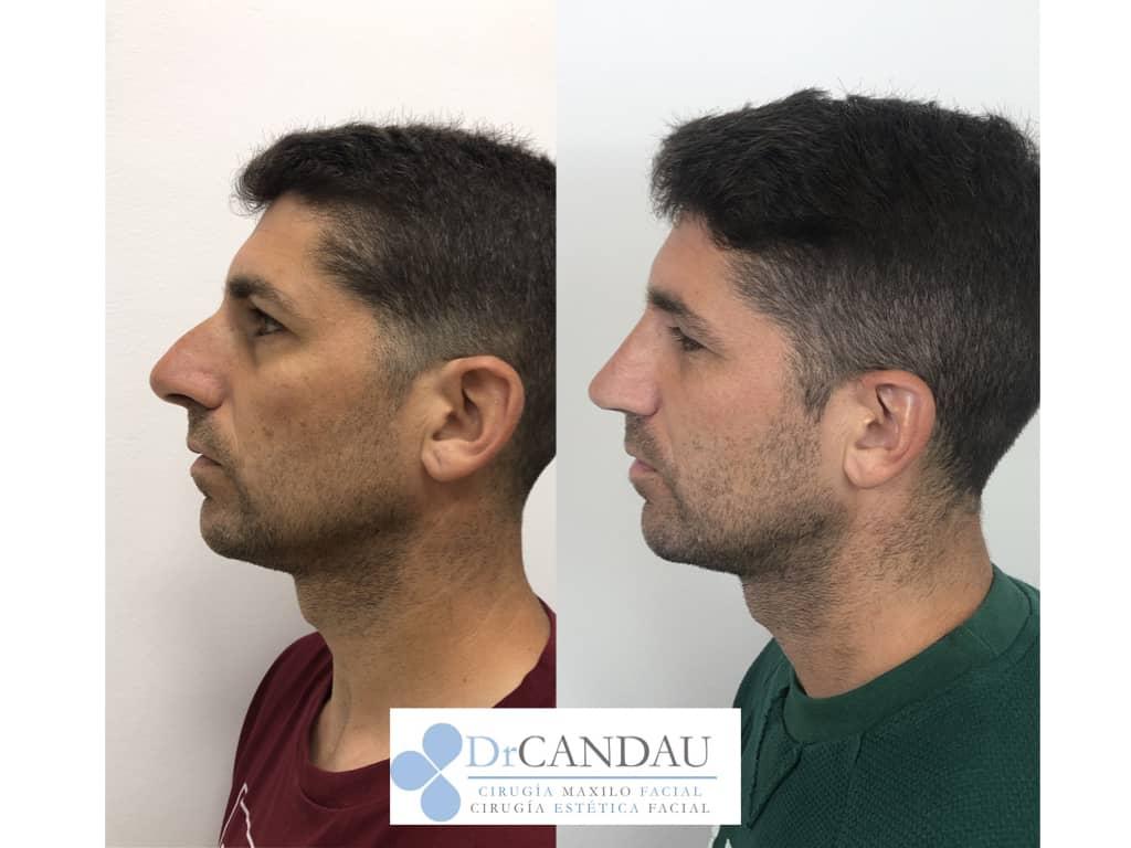 septorinoplastia-ultrasonica-dr-candau-5