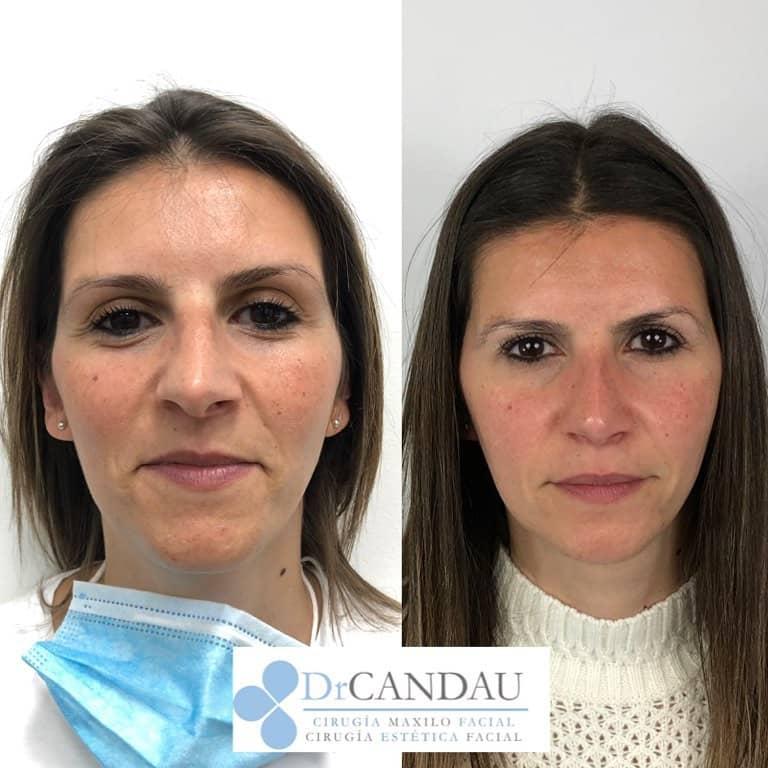 rinoplastia_ultrasonica_ambulatoria_bajo_sedacion_drcandau_c